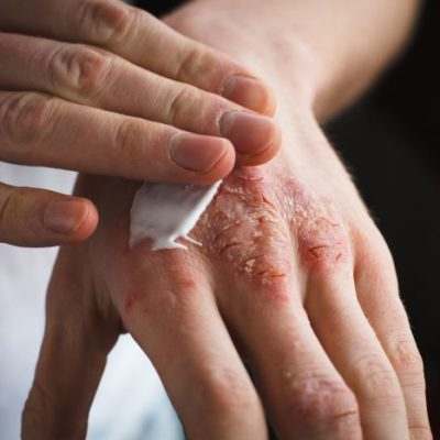 7 tips to improve Eczema Naturally